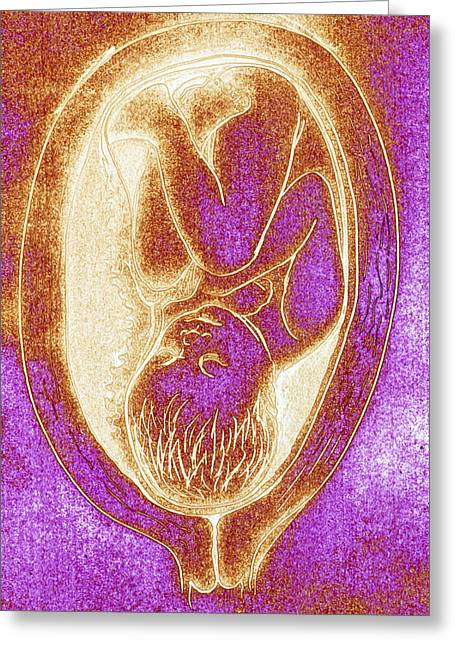 Pregnancy Greeting Cards - Artwork Of Foetus In 33rd Week Of Pregnancy Greeting Card by David Gifford