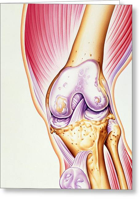Knee Joint Greeting Cards - Artwork Of Osteoarthritis Of Knee Joint Greeting Card by John Bavosi
