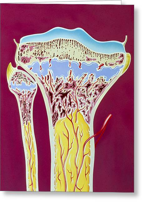 Tibia Greeting Cards - Artwork Of Rickets In Tibia And Fibula Bones Greeting Card by John Bavosi