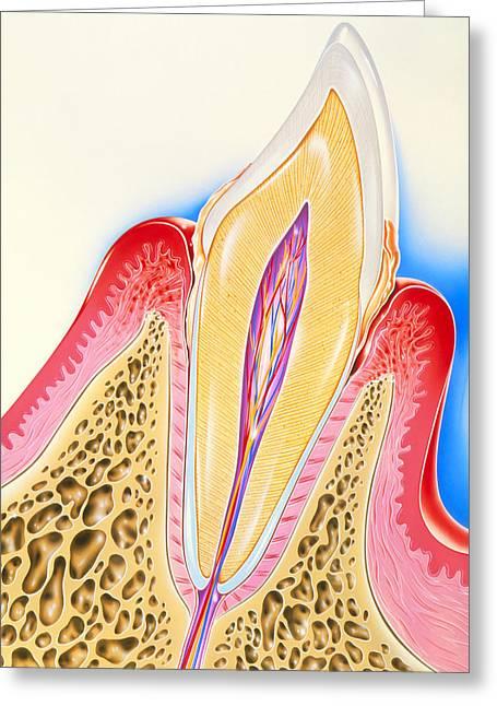 Calculus Greeting Cards - Artwork Of Tooth Showing Periodontal Disease Greeting Card by John Bavosi