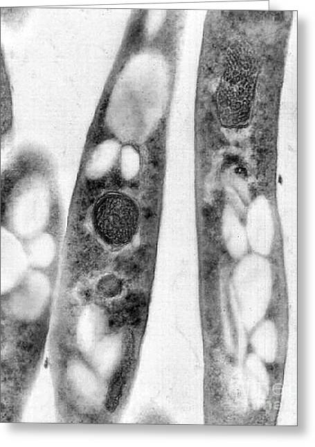 B. Anthracis Greeting Cards - Bacillus Anthracis, Tem Greeting Card by Science Source