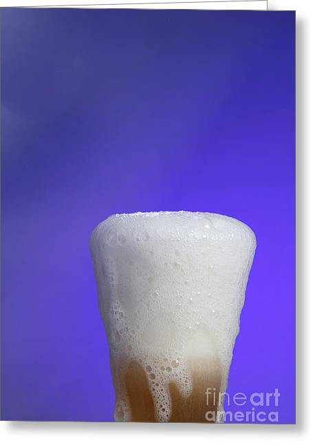 Baking Soda Reacting With Vinegar Greeting Card by Photo Researchers, Inc.