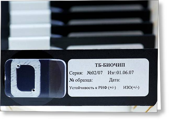 Automation Greeting Cards - Biochip For Detection Of Tuberculosis Greeting Card by Ria Novosti