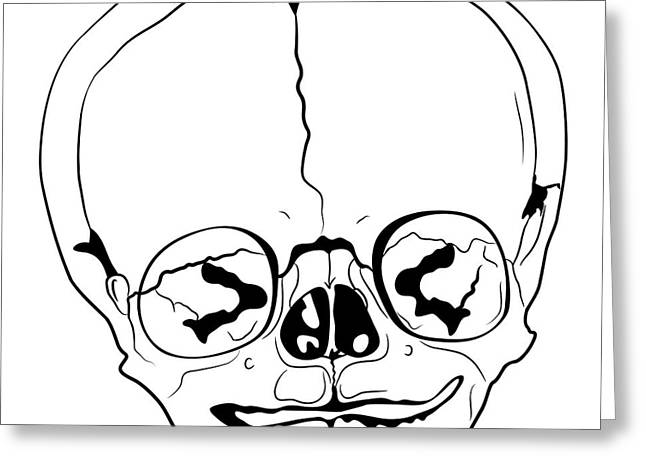 Bizarre Drawings Greeting Cards - Bizarre Skull Greeting Card by Michal Boubin