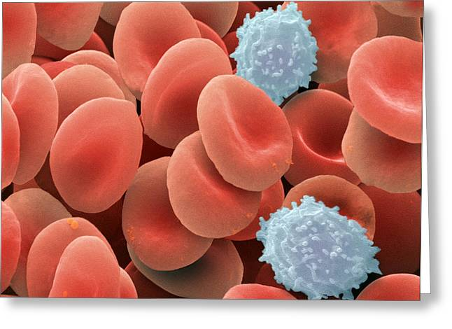 Oxygen Transport Greeting Cards - Blood Cells, Sem Greeting Card by Power And Syred