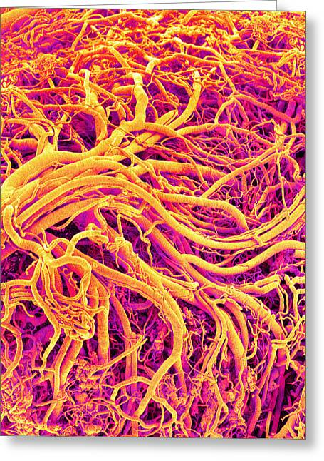 Scanning Electron Micrograph Greeting Cards - Blood Vessels Of A Lymph Node, Sem Greeting Card by Susumu Nishinaga
