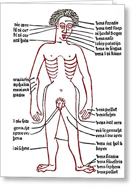 Historical Images Greeting Cards - Bloodletting Sites, 15th Century Diagram Greeting Card by Sheila Terry