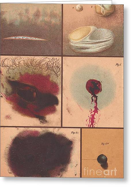 Law Enforcement Art Photographs Greeting Cards - Bloodstain, Blisters, Bullet Holes, 1864 Greeting Card by Science Source