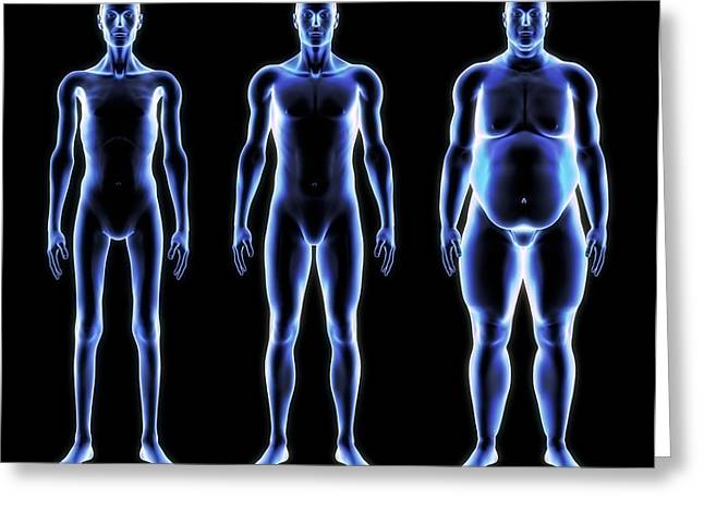 Body Mass Greeting Cards - Body Shapes, Artwork Greeting Card by Roger Harris