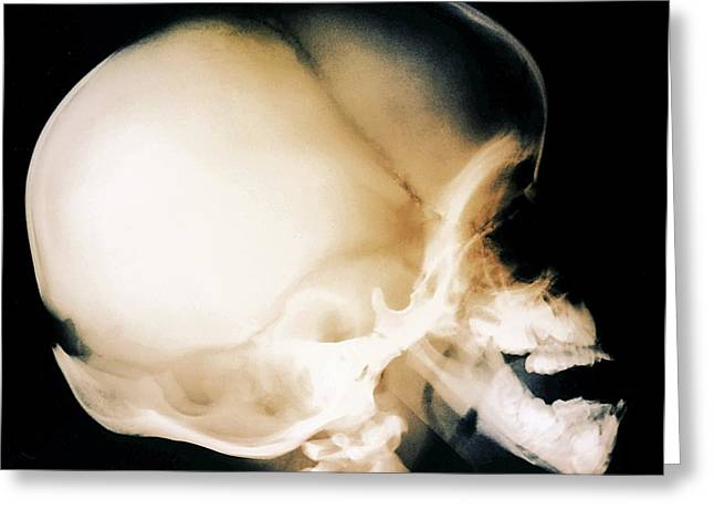 Weak Disorder Greeting Cards - Bone Growth Disorder Of Skull, X-ray Greeting Card by Zephyr