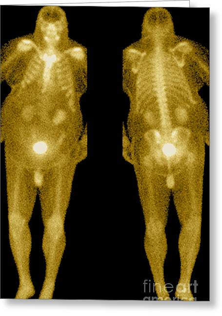 Metabolism Greeting Cards - Bone Scan Greeting Card by Medical Body Scans