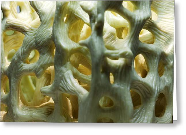 Bone Structure Greeting Cards - Bone Structure, Macrophotograph Greeting Card by Pasieka