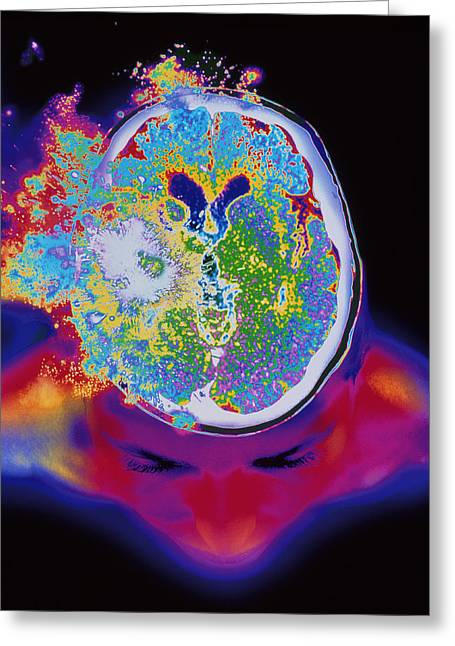 Exploding Head Greeting Cards - Brain Malfunction Greeting Card by Mehau Kulyk