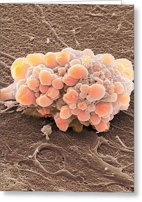 Biological Greeting Cards - Brain Tumour, Sem Greeting Card by Steve Gschmeissner