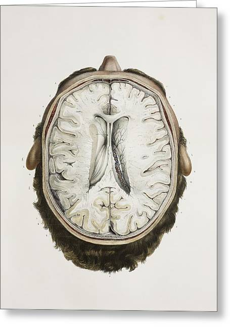 Ventricles Greeting Cards - Brain Ventricles, 1844 Artwork Greeting Card by