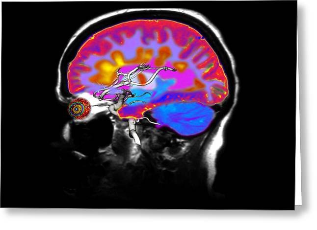 Multiple Sclerosis Greeting Cards - Brain With Multiple Sclerosis Greeting Card by Medical Body Scans