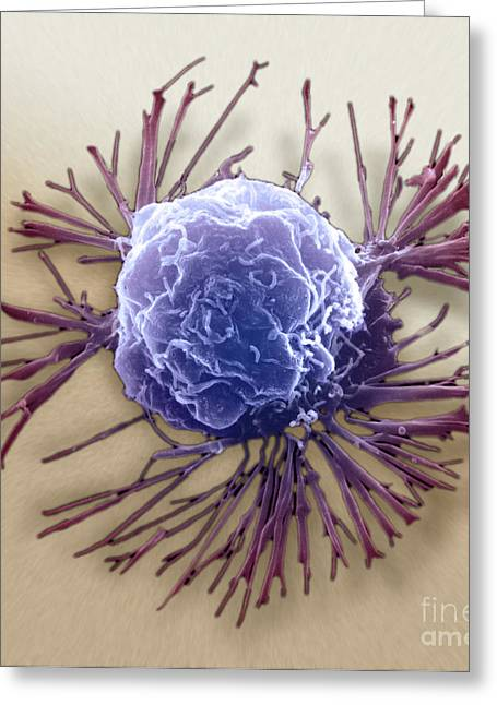 Scanning Electron Micrograph Greeting Cards - Breast Cancer Cell, Sem Greeting Card by Science Source