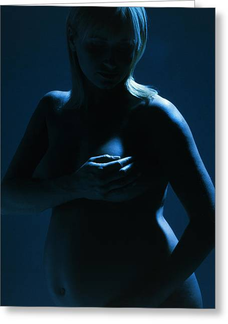Pregnancy Greeting Cards - Breast Cancer In Pregnancy Greeting Card by Ian Boddy