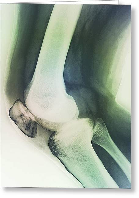 35-39 Years Greeting Cards - Broken Knee, X-ray Greeting Card by Zephyr