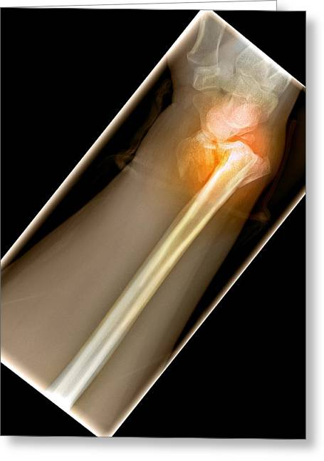 False-colour Greeting Cards - Broken Wrist, X-ray Greeting Card by