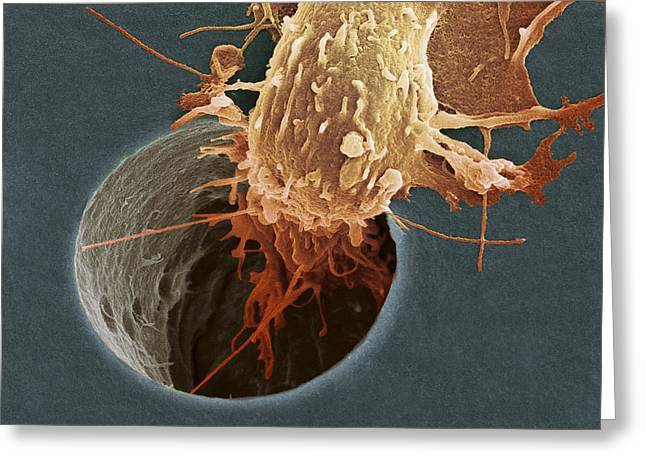 Squamous Greeting Cards - Cancer Cell Migrating, Sem Greeting Card by A. Weston, S. Gschmeissner, Debra