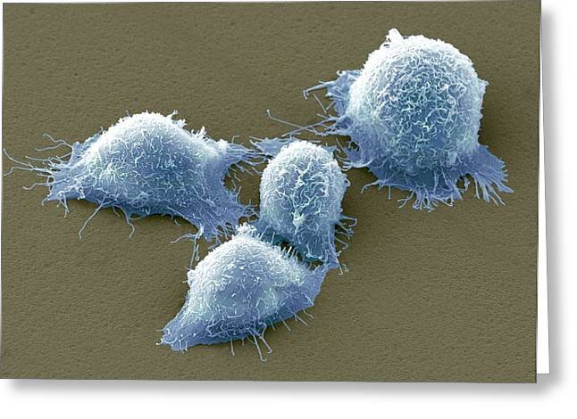 Scanning Electron Microscope Greeting Cards - Cervical Cancer Cells, Sem Greeting Card by Steve Gschmeissner