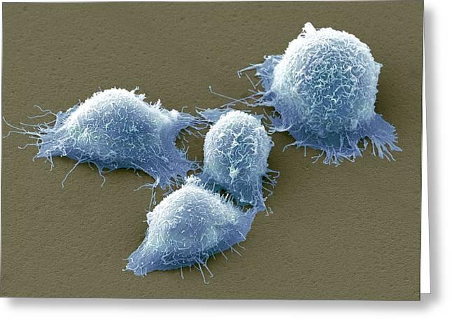 Cervical Greeting Cards - Cervical Cancer Cells, Sem Greeting Card by Steve Gschmeissner