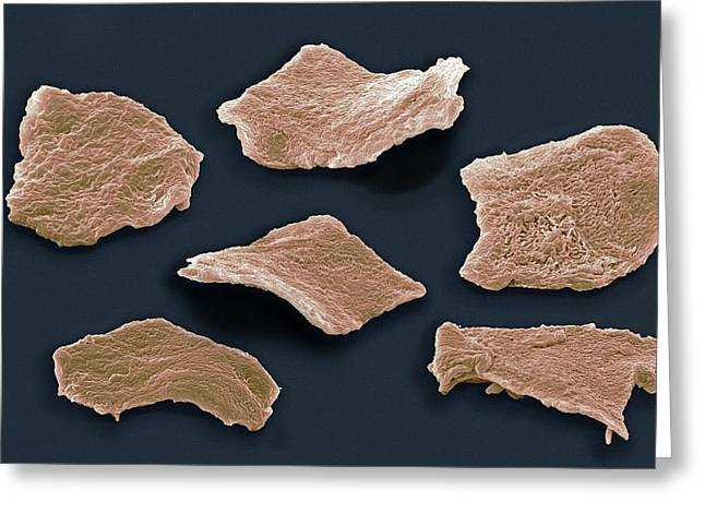 Flattened Greeting Cards - Cheek Squamous Cells, Sem Greeting Card by Steve Gschmeissner