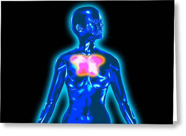 Chest Greeting Cards - Chest Pain Greeting Card by Christian Darkin