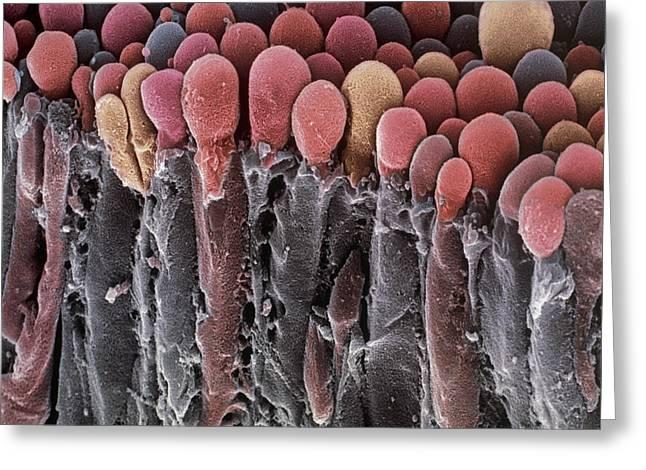 Secretory Greeting Cards - Choroid Plexus Secretory Cells, Sem Greeting Card by Steve Gschmeissner
