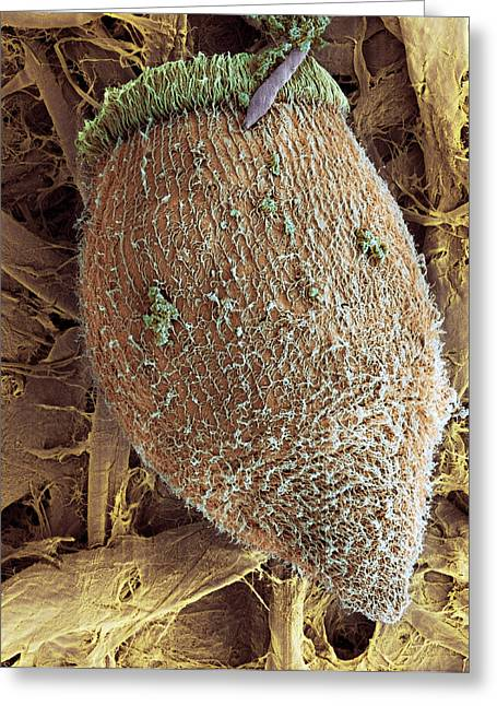 Single-celled Greeting Cards - Ciliate Protozoan, Sem Greeting Card by Steve Gschmeissner