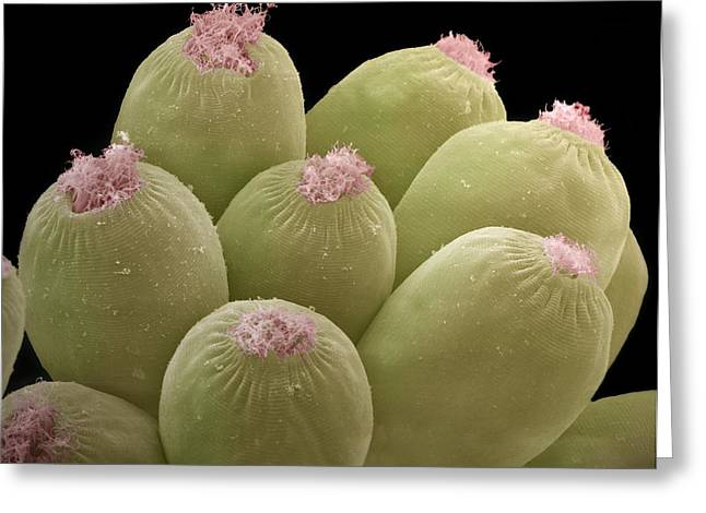 Microorganisms Greeting Cards - Ciliate Protozoans, Sem Greeting Card by Steve Gschmeissner