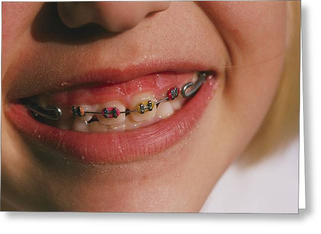 Germantown Greeting Cards - Close View Of Childrens Braces. Shows Greeting Card by Brian Gordon Green
