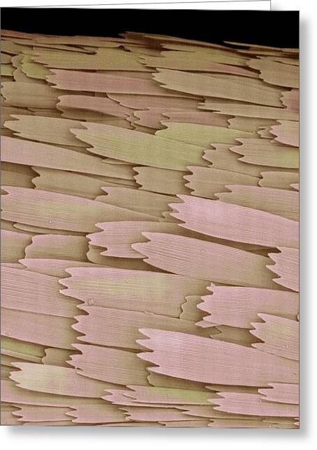 Large Scale Greeting Cards - Clothes Moth Scales, Sem Greeting Card by Steve Gschmeissner