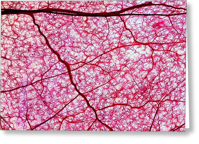 Arteriole Greeting Cards - Colon Blood Vessels, Light Micrograph Greeting Card by Dr Keith Wheeler