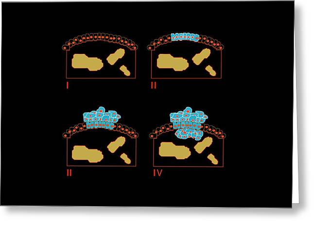 Proliferate Greeting Cards - Colon Cancer Stages, Artwork Greeting Card by Francis Leroy, Biocosmos