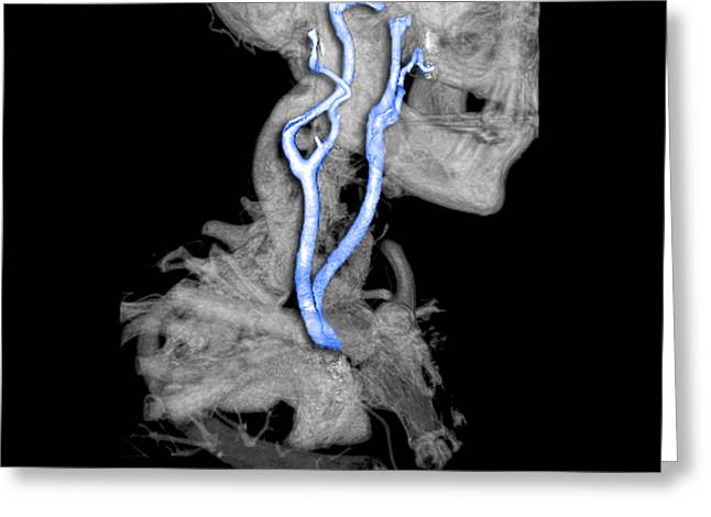 Color Enhanced 3d Cta Of Carotid Greeting Card by Medical Body Scans
