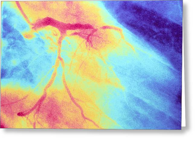 Angiogram Greeting Cards - Colour Angiogram Of Left Coronary Artery Stenosis Greeting Card by Mehau Kulyk