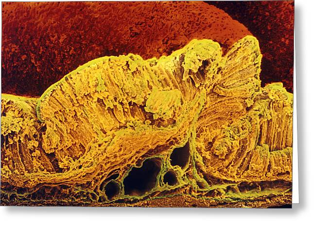 Stomach Greeting Cards - Colour Sem Of Cross-section Through Stomach Wall Greeting Card by Prof Cinti & V. Gremetspl