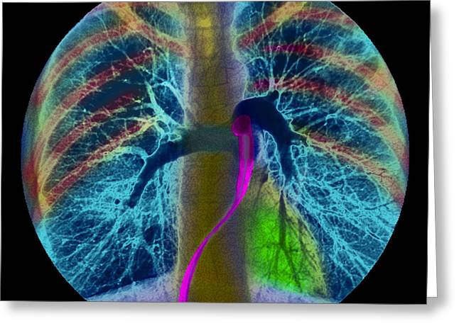 Pulmonary Greeting Cards - Coloured Angiogram Showing The Pulmonary Arteries Greeting Card by