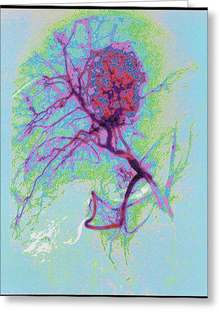 Liver Greeting Cards - Coloured Angiogram X-ray Of A Tumour In The Liver Greeting Card by Mehau Kulyk