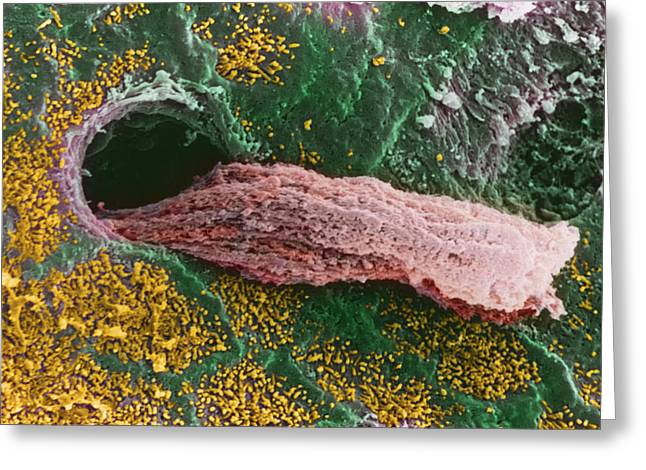 Gland Greeting Cards - Coloured Sem Of A Secreting Uterine Gland Greeting Card by Steve Gschmeissner