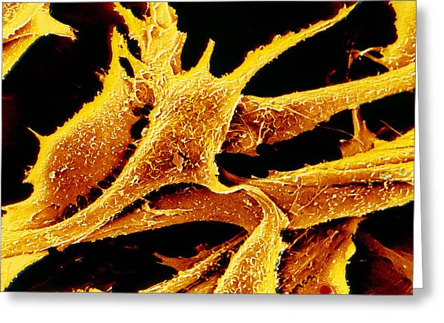 Connective Tissue Greeting Cards - Coloured Sem Of Cultured Fibroblast Cells Greeting Card by Cnri Photo Library