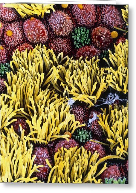 "Microvillus Greeting Cards - Coloured Sem Of Fallopian Tube Cilia & Microvilli Greeting Card by Prof. P. Mottadept. Of Anatomyuniversity \la Sapienza\"", Rome"""