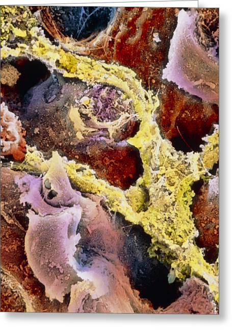 "Liver Greeting Cards - Coloured Sem Of Liver Tissue With Fibrosis Greeting Card by Prof. P. Mottadept. Of Anatomyuniversity \la Sapienza"", Rome"""