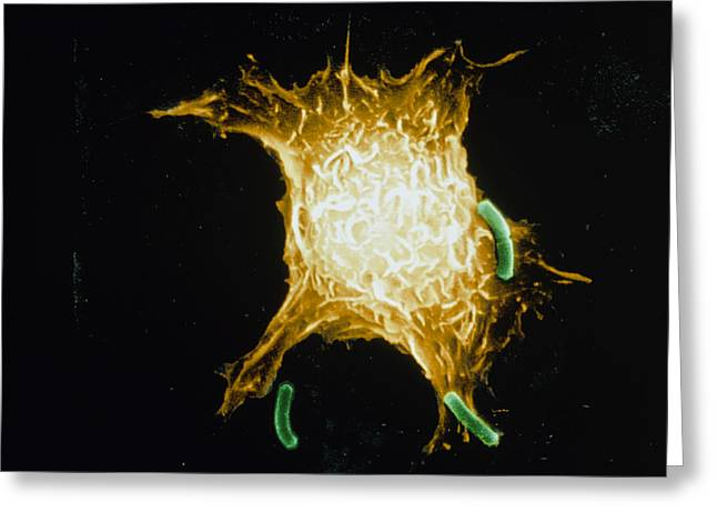Macrophage Greeting Cards - Coloured Sem Of Macrophage Attacking Bacteria Greeting Card by Dr Gopal Murti