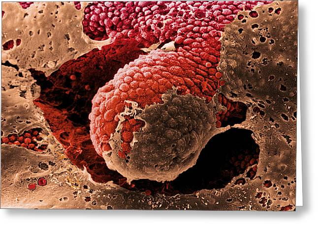 Mucosa Greeting Cards - Coloured Sem Of The Mucosa Of The Large Intestine Greeting Card by Steve Gschmeissner