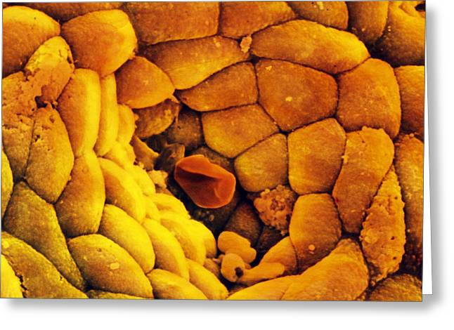Mucosa Greeting Cards - Coloured Sem Of The Stomach Mucosa & Gastric Pit Greeting Card by Prof Cinti & V. Gremetspl
