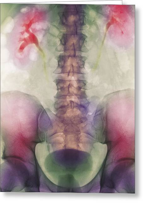 Ureter Greeting Cards - Coloured X-ray Of A Kidney Stone In A Ureter Greeting Card by