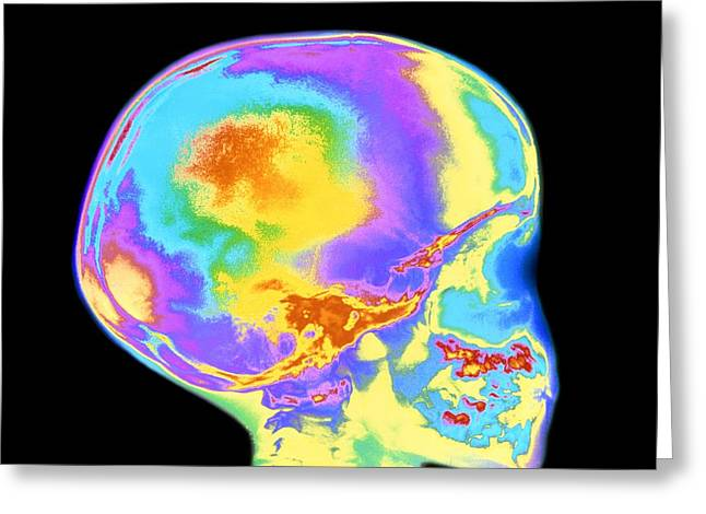 Milk Tooth Greeting Cards - Coloured X-ray Of Childs Skull And Tooth Eruption Greeting Card by Mehau Kulyk